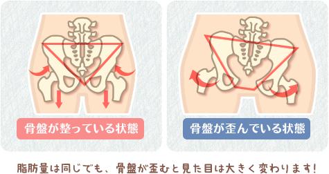 骨盤がゆがむと脂肪量が同じでも見た目が大きく変わる