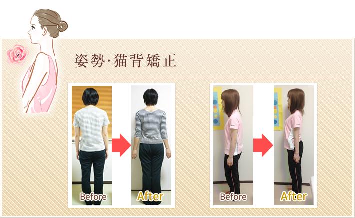 姿勢矯正Before&After